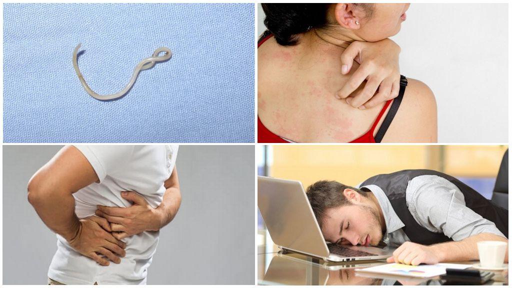 Tekenen van wormen