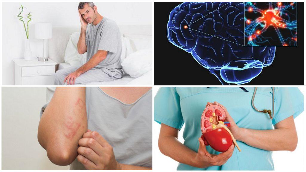 Gelijktijdige ziekten met Giardia's